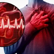 سکته قلبی|علائم سکته قلبی ونشانه حمله قلبی